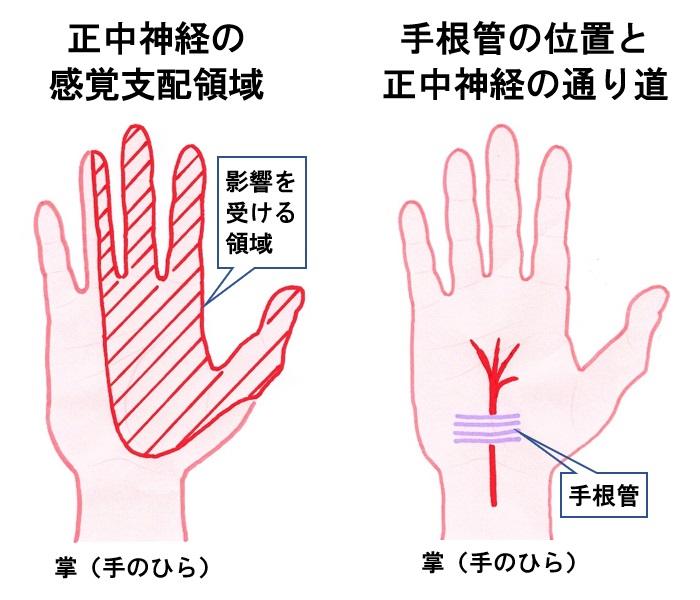 腱鞘炎 手根管症候群の発症位置
