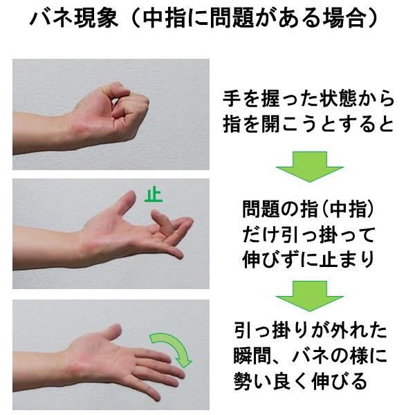 バネ指のバネ現象を再現