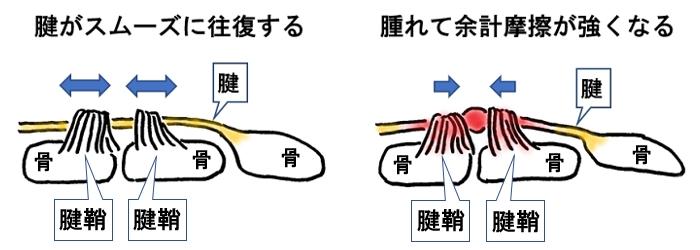 腱鞘炎の状況